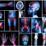 The Effects of Osteoarthritis Explained