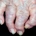 Relieve Osteoarthritis With New Custom Compounding