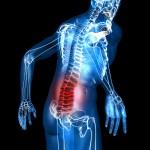 No More Drugs! Phenomenal NEW Sciatica Treatment