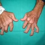 Revolutionary Arthritis Treatment: An End To Chronic Pain