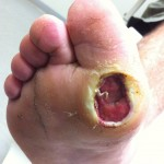 Living with Diabetic Foot Ulcers