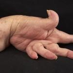 Amazing New Rheumatoid Arthritis Treatment Revealed