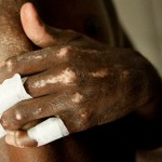 Scleroderma: What You Need To Know